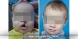 Медики со всей страны возвращают детям в Бурятии возможность улыбаться